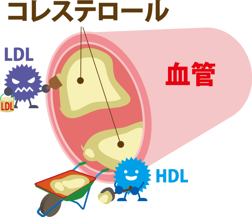 HDLコレステロールが低いと血管に悪影響が